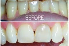 KDC-FA-Teeth-Whitening