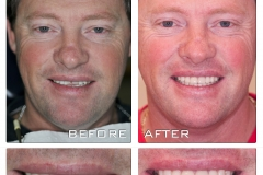 CEREC before and after.  Healthy smile, healthy life.