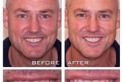 CEREC before and after. Better smile brings better confidence