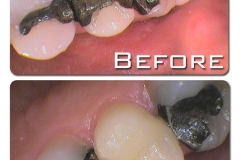 Replacement of amalgam filled, cracked tooth, with a CEREC crown (one visit)