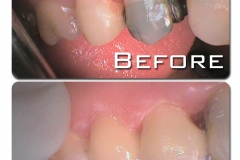 Kaleen-Dental-Care-CEREC-before-after-111024