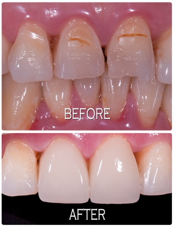 kdcfa crown veneer
