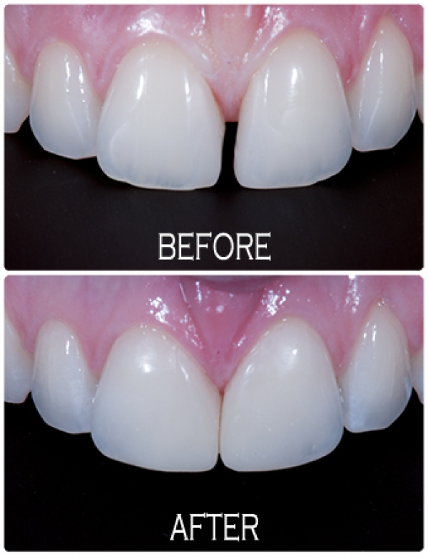KDC FA tooth coloured resin