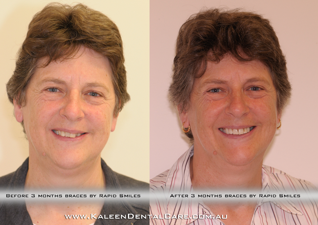 before-after-3-months-braces-by-rapid-smiles